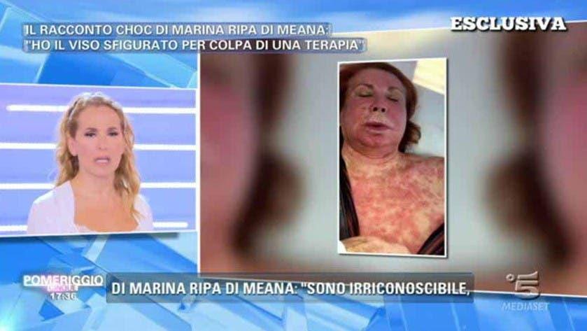 Marina Ripa di Meana sfigurata - shock anafilattico
